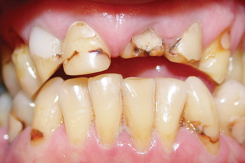 Conservative Management of the Worn Dentition - Including Injection Moulding Restorative Techniques