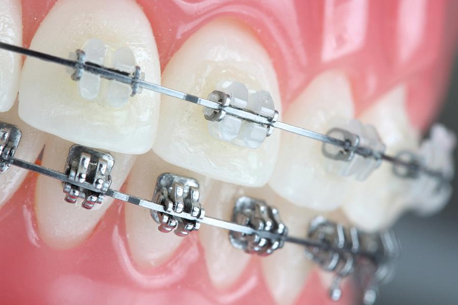 Advanced Orthodontics