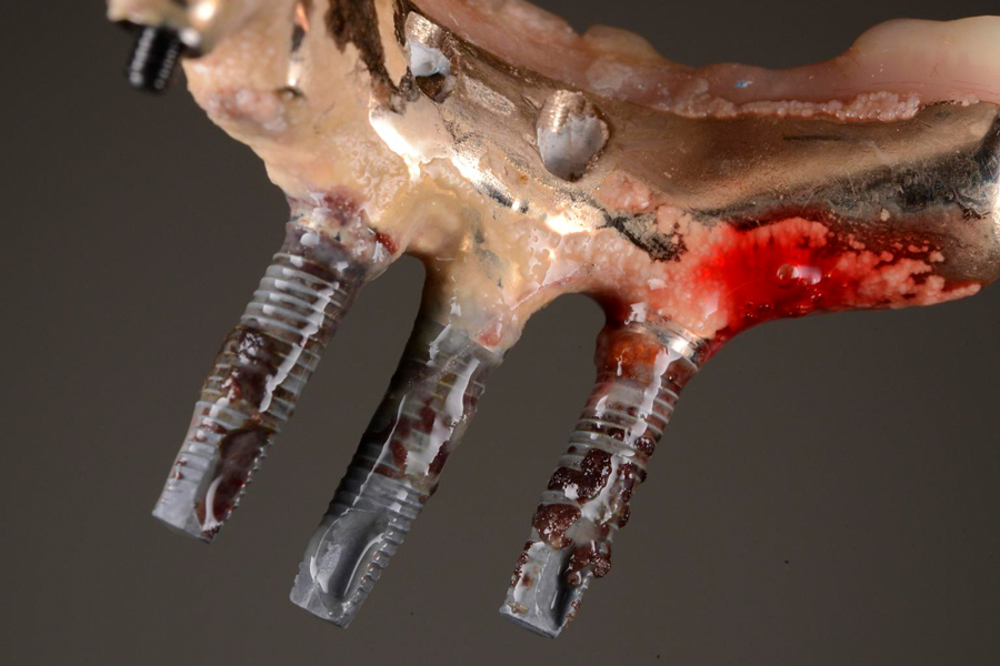 Managing Implant Complications