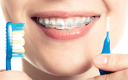 Oral Hygiene Considerations for the Orthodontic Patient