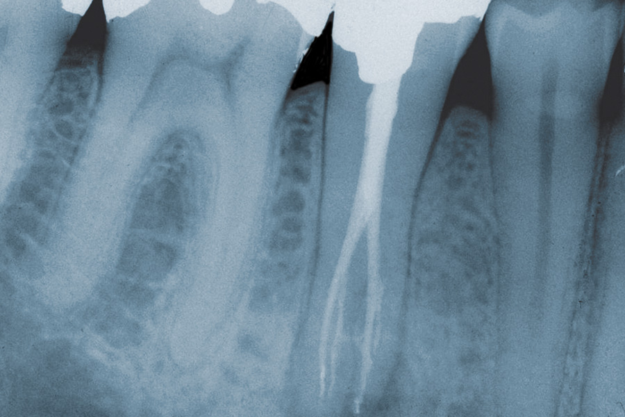 Maximising Endodontic Success
