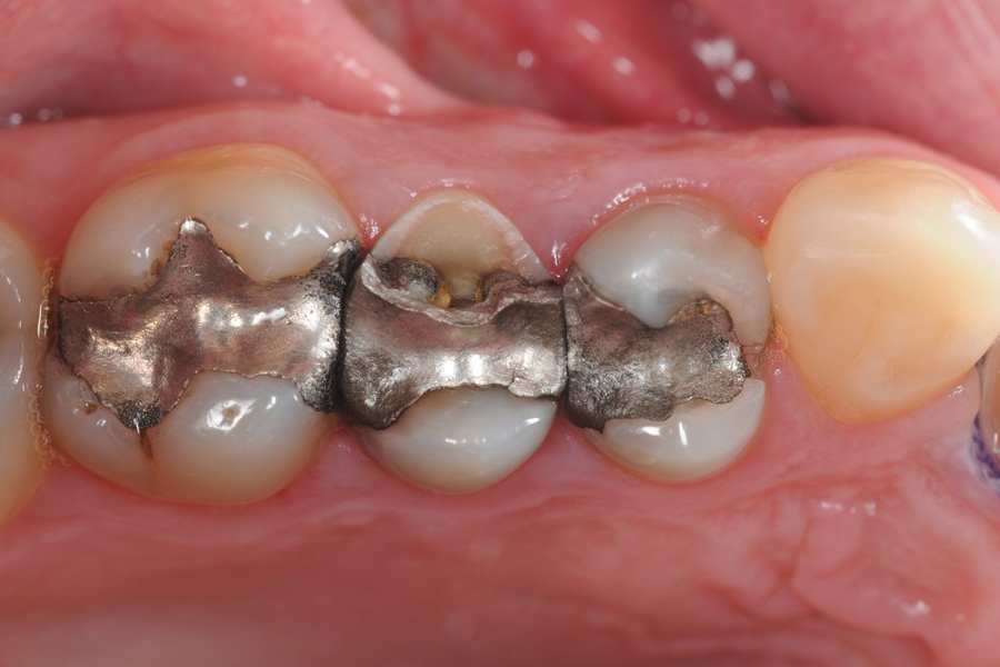Alternatives to Crowns