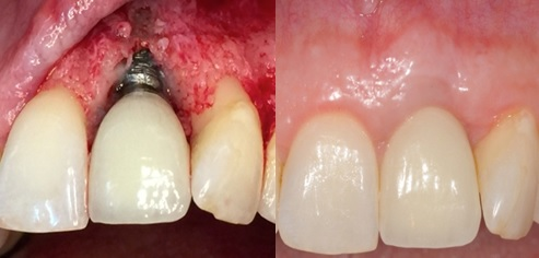Foundation Course on Aesthetic Implant Failures and Gingival Recession Management
