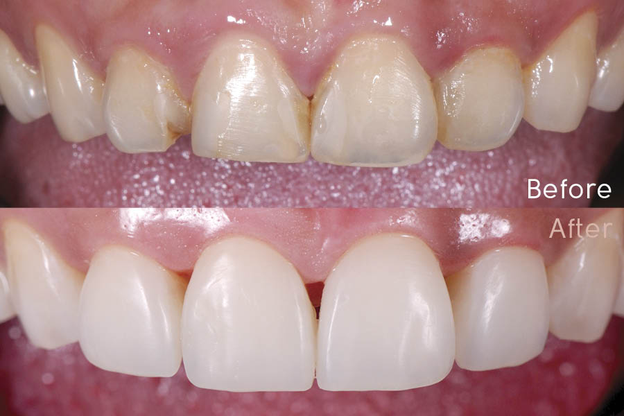 Simplifying Aesthetic Anterior Composite Resins