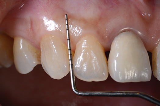 Periodontics in General Practice: Part 1