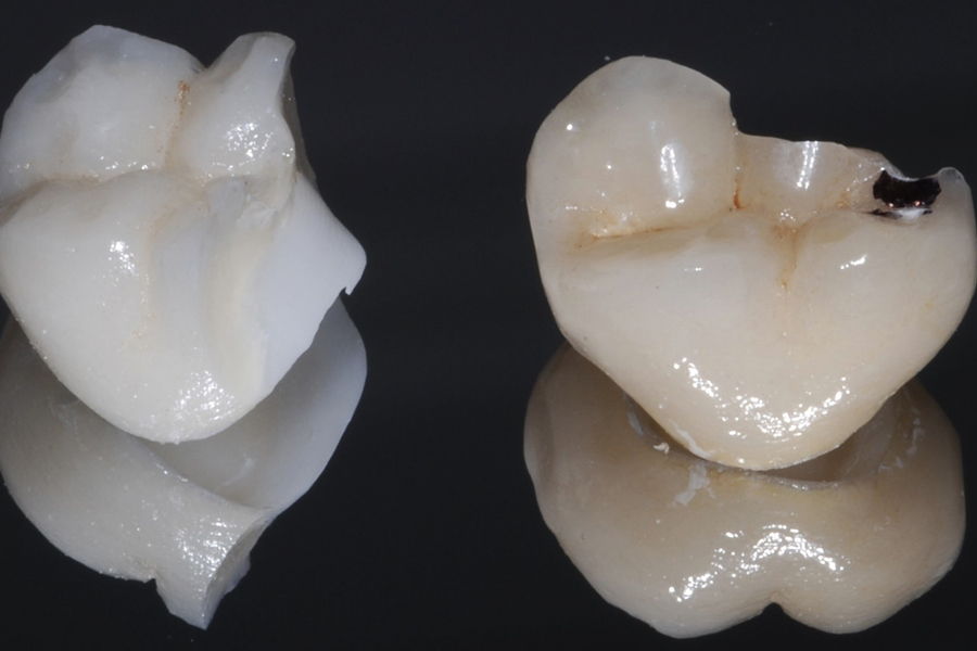 Prosthodontic Problems?
