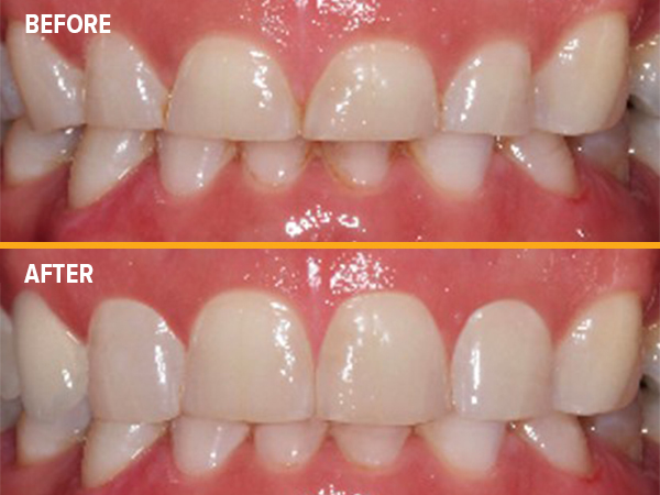 Minimally Invasive Dental Extractions and Crown Lengthening Surgery